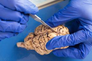 student-using-scalpel-to-dissect-cow-brain-close-up-gloved-hands-anatomy-veterinarian-medical-technologist-36126693